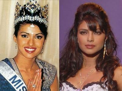 Aktris Bollywood yang Sukses & Gagal Operasi Hidung ...